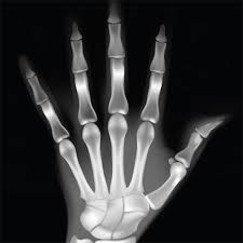 porcopásos kéz