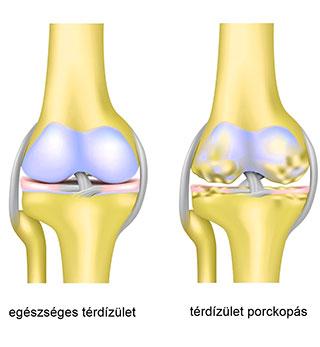 mi az artrózis, mint a kezelés)