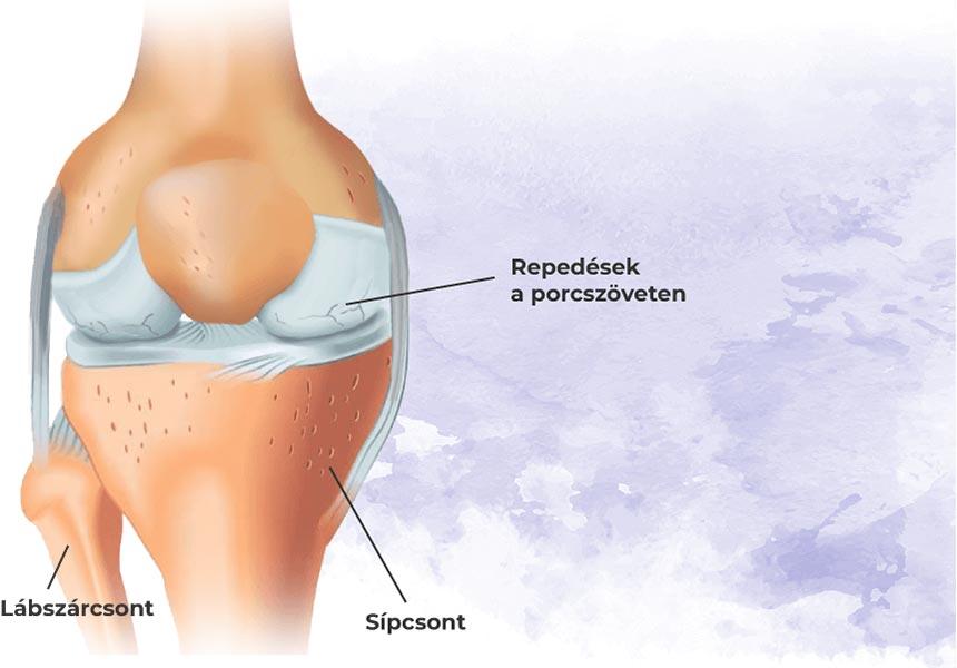az első stádiumú artrózis kezelése)